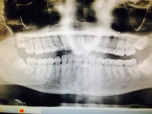 my gigi xray