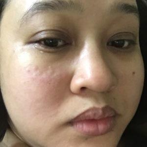 rashes-skin